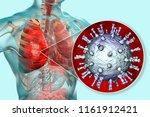 varicella zoster virus... | Shutterstock . vector #1161912421