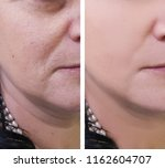 woman wrinkles on face before... | Shutterstock . vector #1162604707