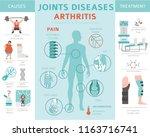 joints diseases. arthritis... | Shutterstock .eps vector #1163716741