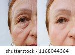elderly woman wrinkles face... | Shutterstock . vector #1168044364