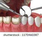 professional teeth cleaning.... | Shutterstock . vector #1170460387
