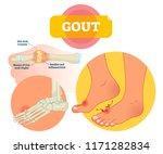 gout vector illustration.... | Shutterstock .eps vector #1171282834
