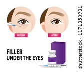 filler injection under the eyes ... | Shutterstock .eps vector #1171353931
