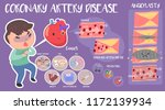 coronary artery disease... | Shutterstock .eps vector #1172139934