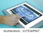 x ray of teeth for therapy in a ... | Shutterstock . vector #1175169967