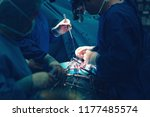 surgeon doctor operating using... | Shutterstock . vector #1177485574