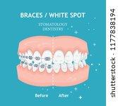 braces concept. white spots.... | Shutterstock .eps vector #1177838194