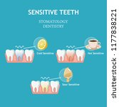 sensitive teeth. stomatology...   Shutterstock .eps vector #1177838221