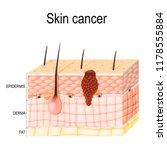 melanoma. skin cancer...   Shutterstock . vector #1178555884