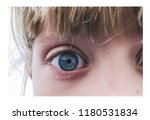 Small photo of the blue scumbag eyes