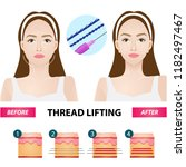 thread lifting vector... | Shutterstock .eps vector #1182497467