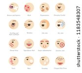 problems with skin and face in... | Shutterstock .eps vector #1183548307