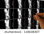 Stock photo doctor making a diagnosis from an xray 118638307