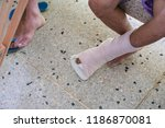 patient with broken leg wearing ... | Shutterstock . vector #1186870081