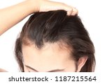 woman serious hair loss problem ... | Shutterstock . vector #1187215564