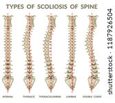 infographics types of scoliosis ... | Shutterstock .eps vector #1187926504