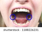 retinished teeth are wisdom... | Shutterstock . vector #1188226231