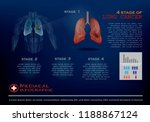 4 stage of lung cancer... | Shutterstock .eps vector #1188867124