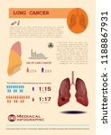 lung cancer infographic  | Shutterstock .eps vector #1188867931