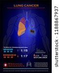lung cancer infographic  | Shutterstock .eps vector #1188867937