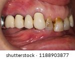 neglected teeth  old crowns   Shutterstock . vector #1188903877