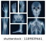 realistic x ray shots of human... | Shutterstock .eps vector #1189839661