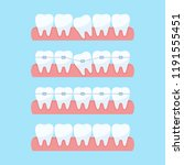 correction of teeth with...   Shutterstock .eps vector #1191555451