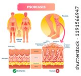 psoriasis vector illustration.... | Shutterstock .eps vector #1191566947