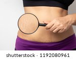 Small photo of Women Show off the belly after birth. Stretch Marks on white background