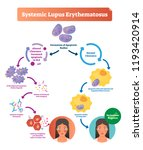 systemic lupus erythematosus... | Shutterstock .eps vector #1193420914