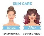 skin problems. skin care before ... | Shutterstock .eps vector #1194577807