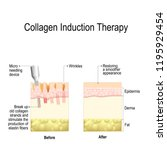 collagen induction therapy ... | Shutterstock . vector #1195929454
