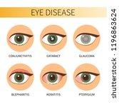 eye diseases vector... | Shutterstock .eps vector #1196863624