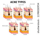 acne types. pimple skin... | Shutterstock .eps vector #1198030954