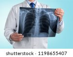 doctor looking chest x ray film ... | Shutterstock . vector #1198655407