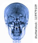 x ray picture of the skull | Shutterstock . vector #119979109