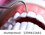 dentist cleaning teeth with...   Shutterstock . vector #1204611661