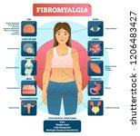 fibromyalgia vector... | Shutterstock .eps vector #1206483427