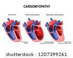 types of heart diseases ... | Shutterstock . vector #1207399261
