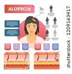 alopecia   hair loss autoimmune ... | Shutterstock .eps vector #1209163417
