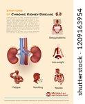 chronic kidney disease... | Shutterstock .eps vector #1209163954