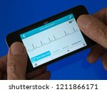 Small photo of User holding portable handheld ECG EKG Heart Monitor App running on mobile phone with trace showing sinus heart rhythm with extra ectopic beat.