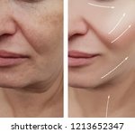 woman face wrinkles before and... | Shutterstock . vector #1213652347