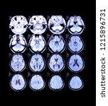 radiograph neuroimaging of... | Shutterstock . vector #1215896731