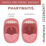 tonsils and throat diseases.... | Shutterstock .eps vector #1221862477