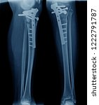 x ray image of leg show tibia... | Shutterstock . vector #1222791787