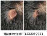 before   after treatment scars...   Shutterstock . vector #1223090731