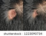 before   after treatment scars...   Shutterstock . vector #1223090734