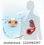 gum disease inflammation... | Shutterstock .eps vector #1224582397