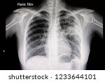 a chest x ray film of a patient ... | Shutterstock . vector #1233644101